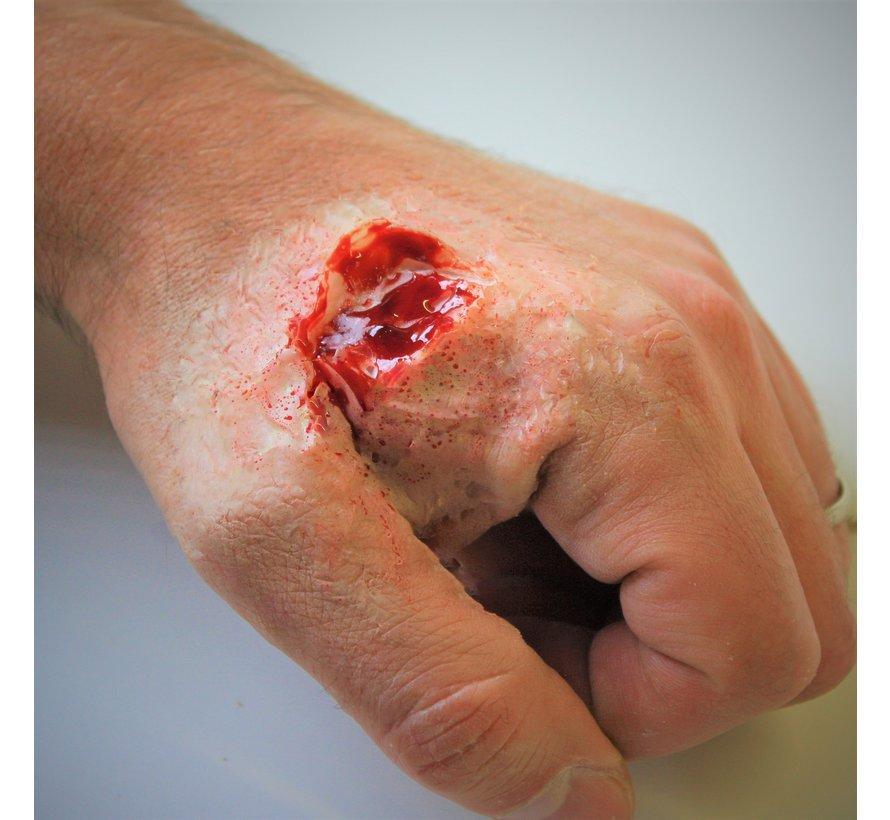 Silikon Wunde auf der Haut