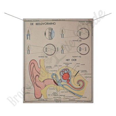 Anatomische plaat drankzucht/gehoor