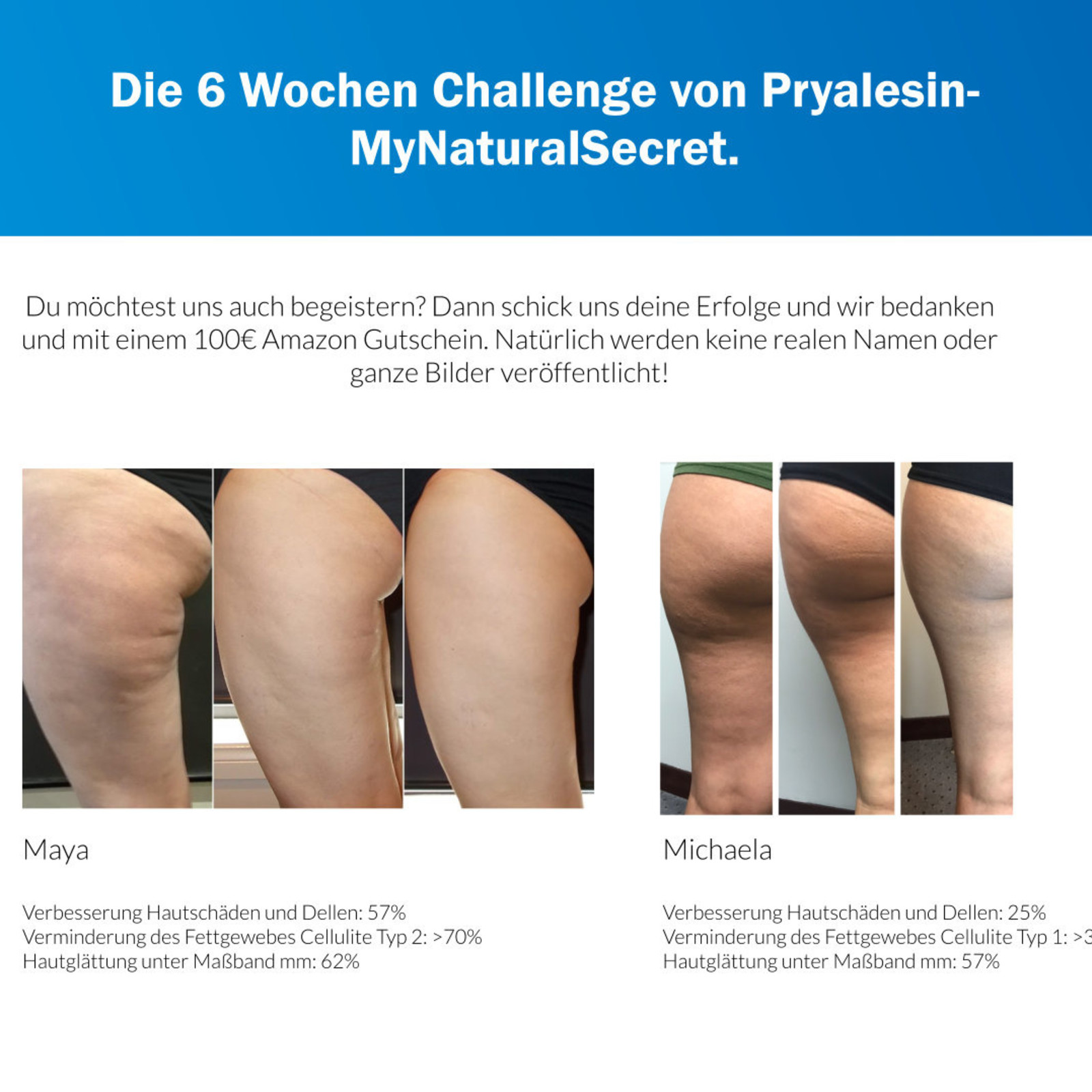Pryalesin Derma Cosmetics MyNaturalSecret Pryalesin PROCELL Day+Night 3er Sonderset