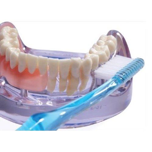 Vitis Vitis Implant Sulcular Tandenborstel