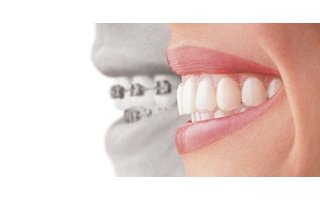Beugel | Orthodontie