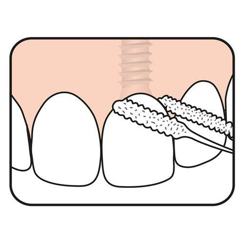 TePe TePe Bridge & Implant Floss - 30 stuks
