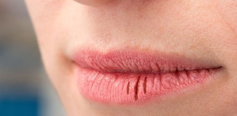 Droge mond | Xerostomie