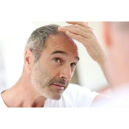Haarverlies man