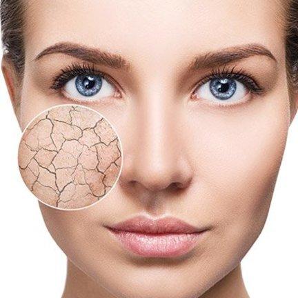 Verzorging voor de droge huid