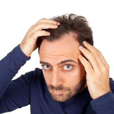 Man's scalp