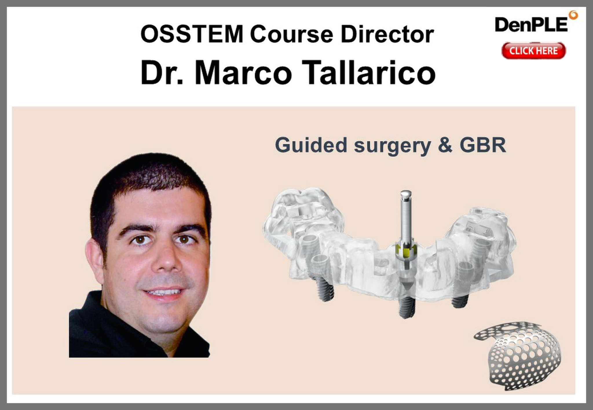Guided Surgery & GBR Dr. M Tallarico