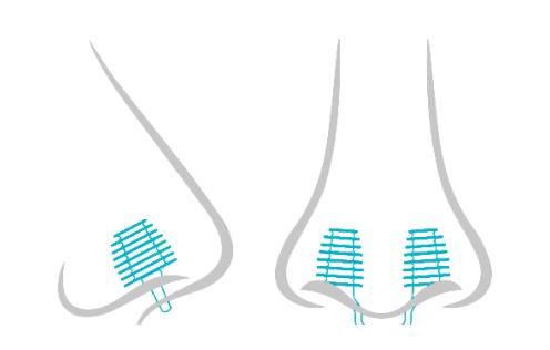 Nosa NOSA plugs anti-geur neusdopjes