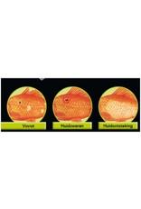 Colombo Morenicol Colombo Morenicol Cytofex is een uniek product op kruidenbasis werkzaam tegen bacteriële infecties.