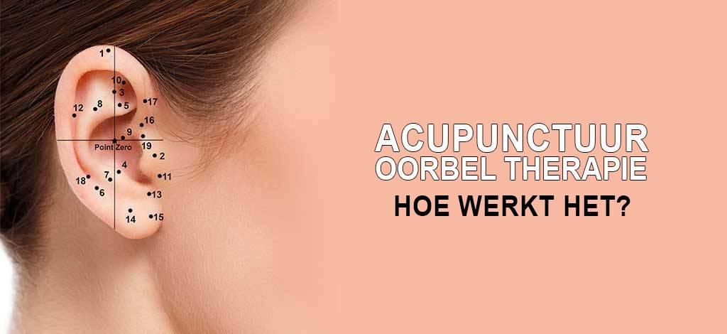 Acupunctuur Oorbel Therapie