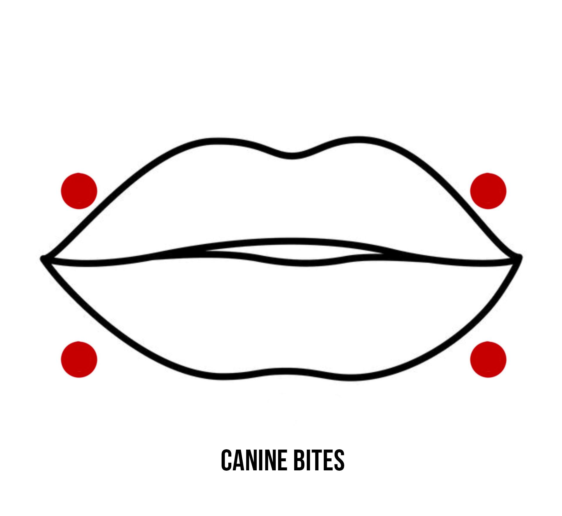 Canine Bites
