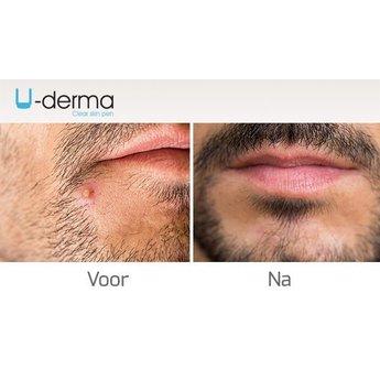 U-Products U-Derma