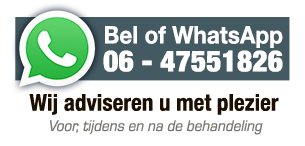 Bel of mail voor advies over beits of houtverf
