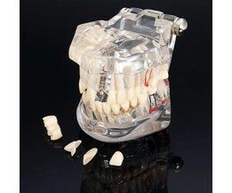 Faux Dentier Modèle