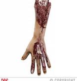 Afgerukte arm
