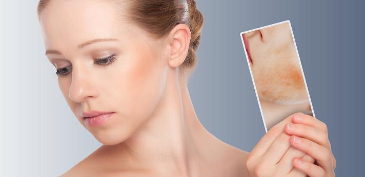 Hoe verminder je roodheid in je gezicht?