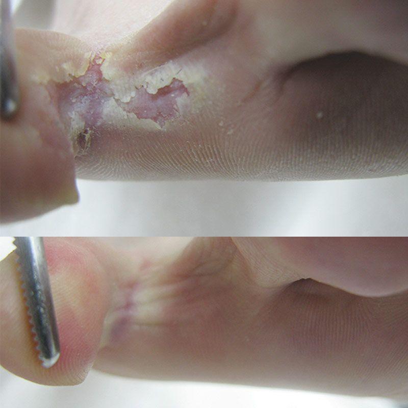 Footlogix Footlogix Peeling Skin Formula - 125ml
