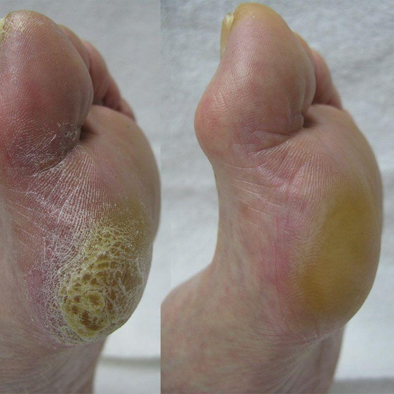 Footlogix Footlogix Professional Callus Softener - 180ml