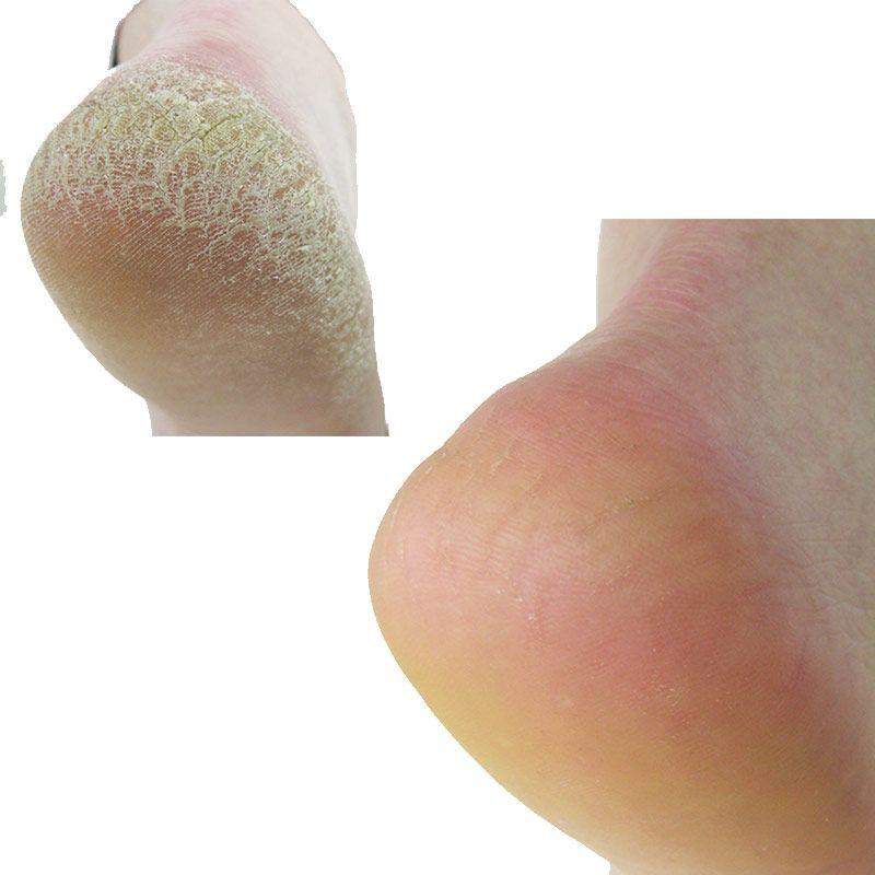 Footlogix Footlogix Rough Skin Formula - 125ml
