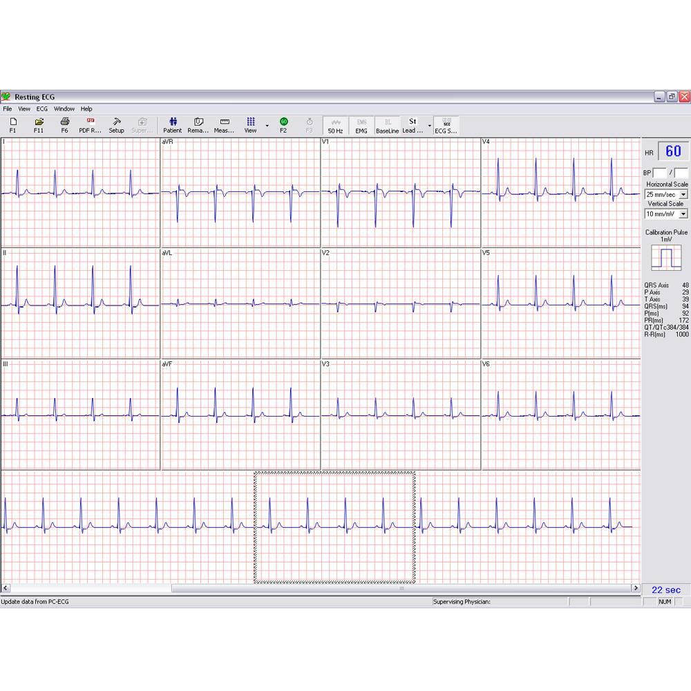 Norav 1200M1200 HR- PC Based Rust ECG Systeem