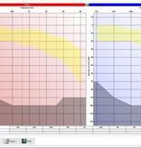 Electronica Medical Audiometer 600 M pc-gestuurde audiometer