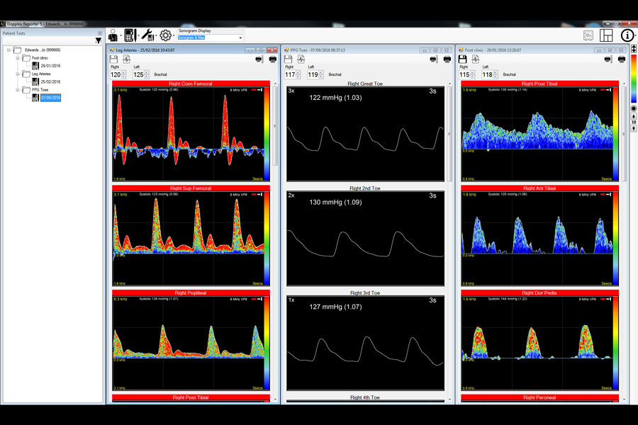 Huntleigh DR5-Softwarepaket