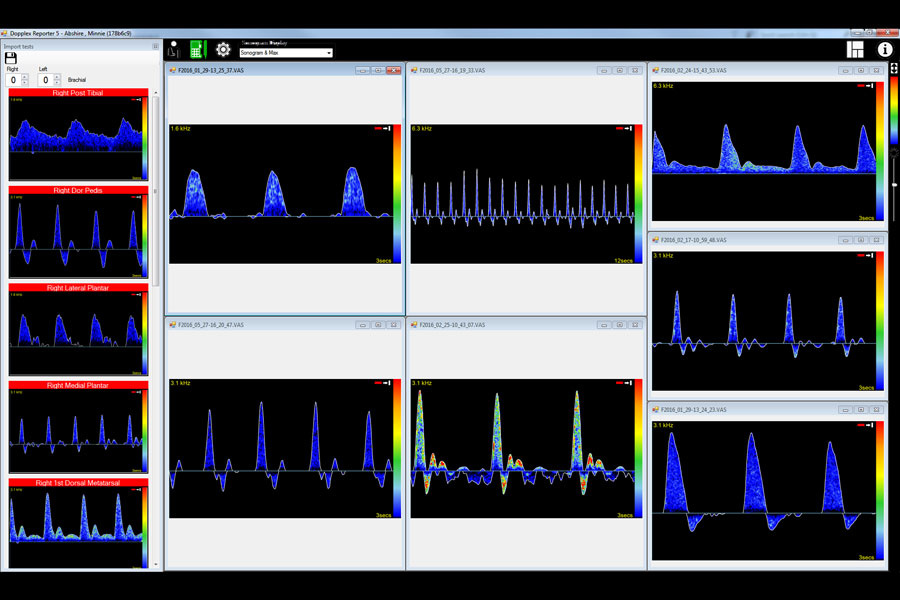 Huntleigh DR5-softwarepakket