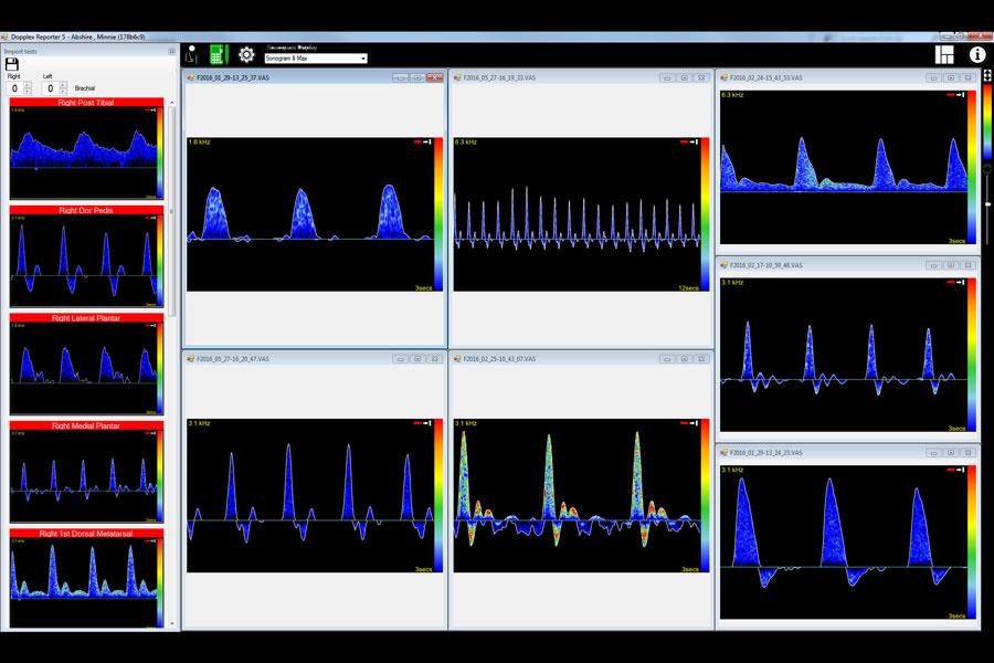 Huntleigh Huntleigh DR5-softwarepakket