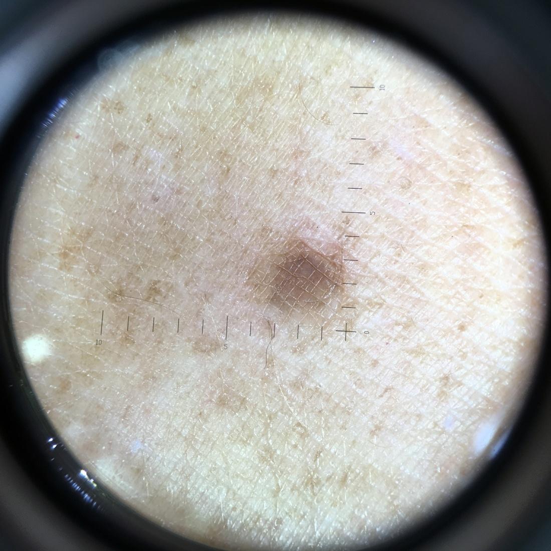 Compacte D-Scope Dermatoscoop