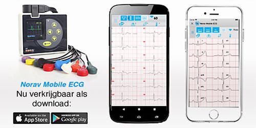 Norav draadloos NR1207 ECG Holter Systeem