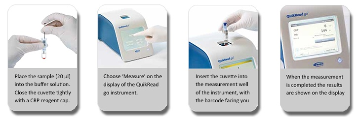 QuikRead go® POC System