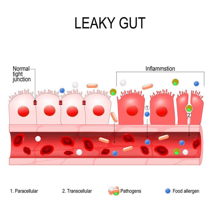 Leaky gut darmwand visueel