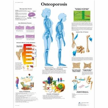 3B Scientific Poster Osteoporose