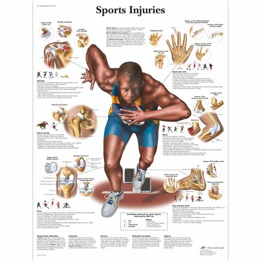 3B Scientific Poster sport Injuries Chart gelamineerd