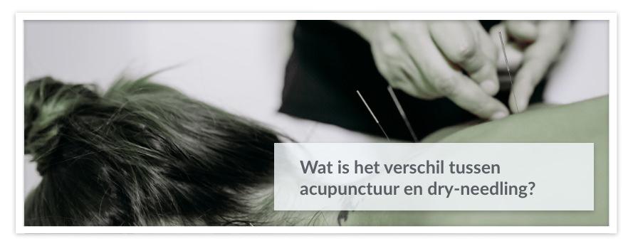 Wat is het verschil tussen acupunctuur en dry-needling?