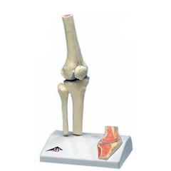 Kniegewricht Mini op statief A85/1