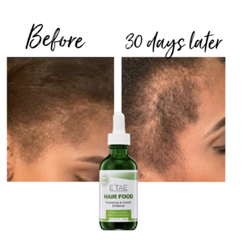 ETEA Natural Products Hair Food Thickening Serum