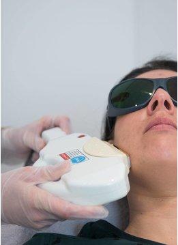 Laserbehandeling Rosacea, Couperose en Roodheden
