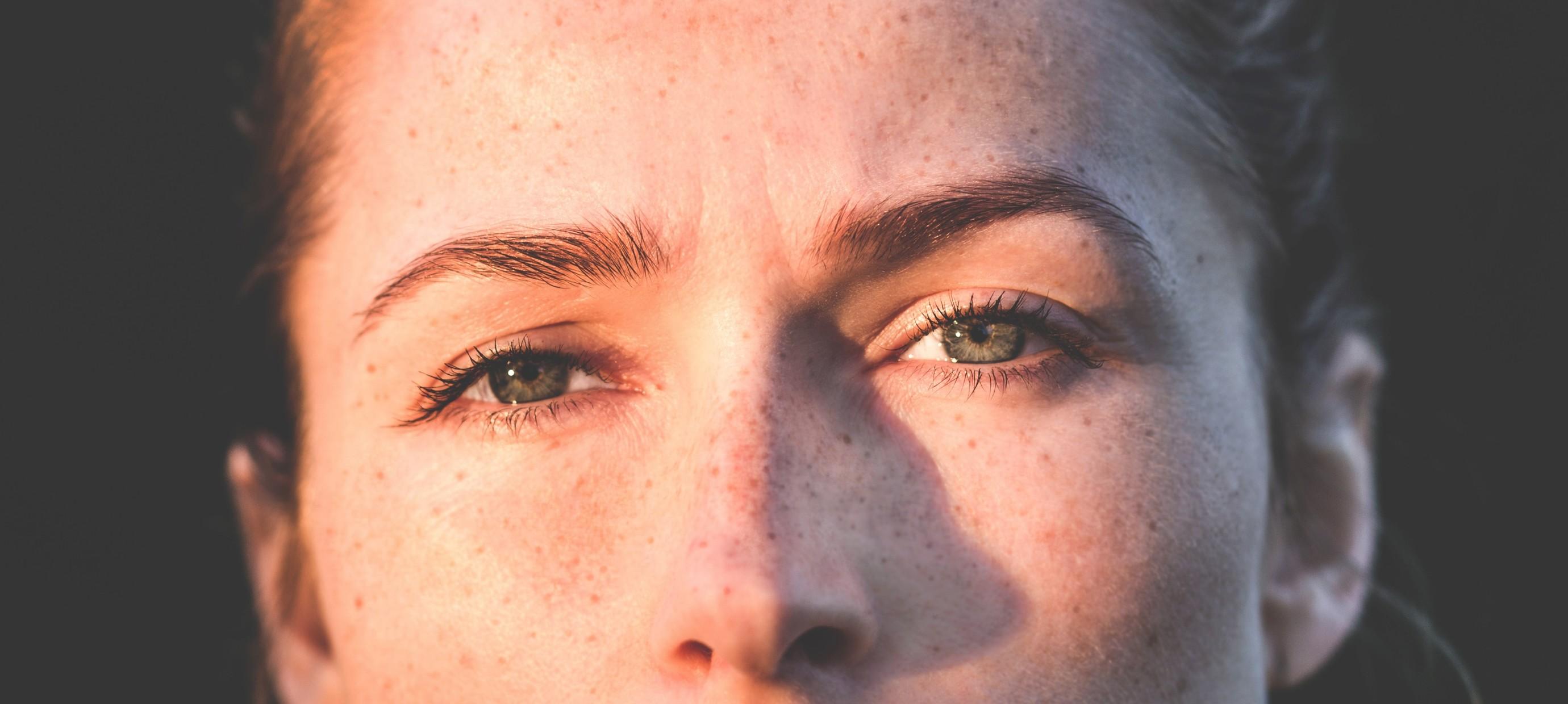 5 natural remedies for dark circles