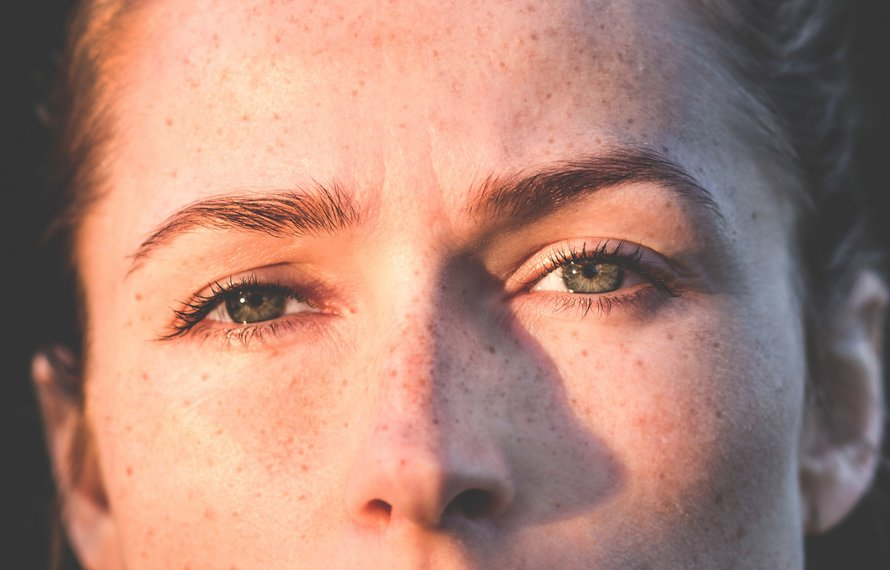 5 natural remedies for dark circles