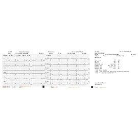 Nihon Kohden Registratiepapier Cardiofax S