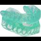 SleepPro Snurkbeugel op Maat Custom AM (antibacterieel)