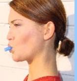 Face-Former: Behandeling tegen snurken