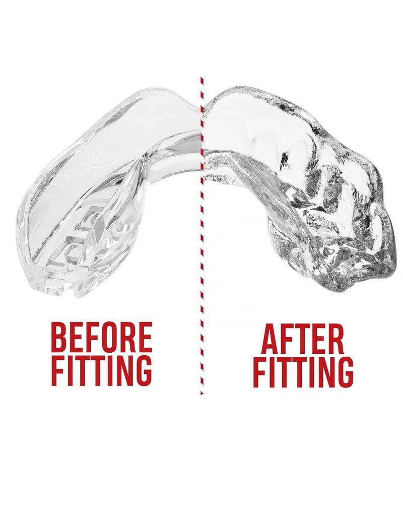 Safejawz Safe Jawz Gum Shield Clear