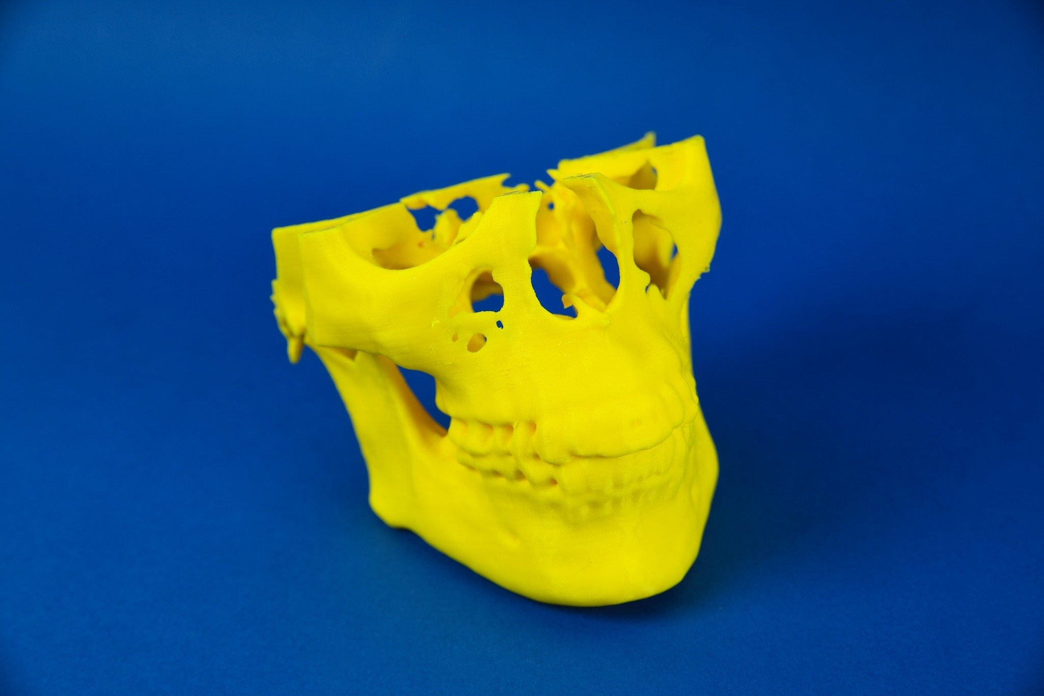 Modelo completo (mandíbulas superior e inferior)