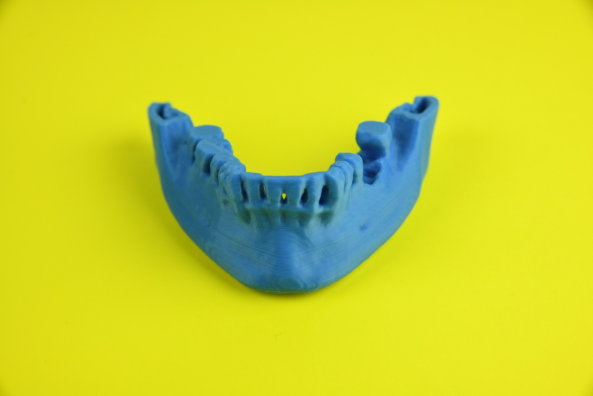 Modelo de mandíbula inferior impreso en 3D