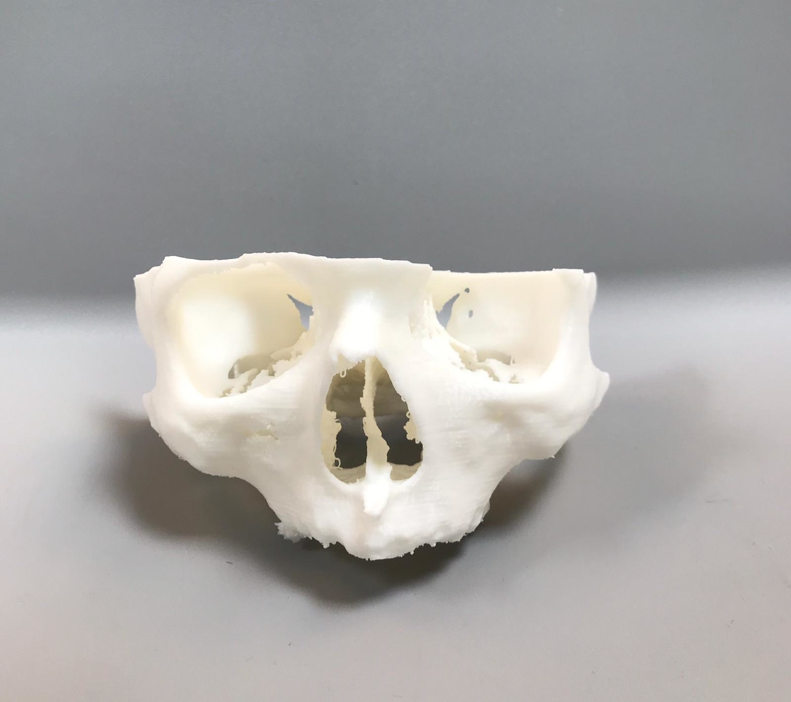 3D printed upper jaw model
