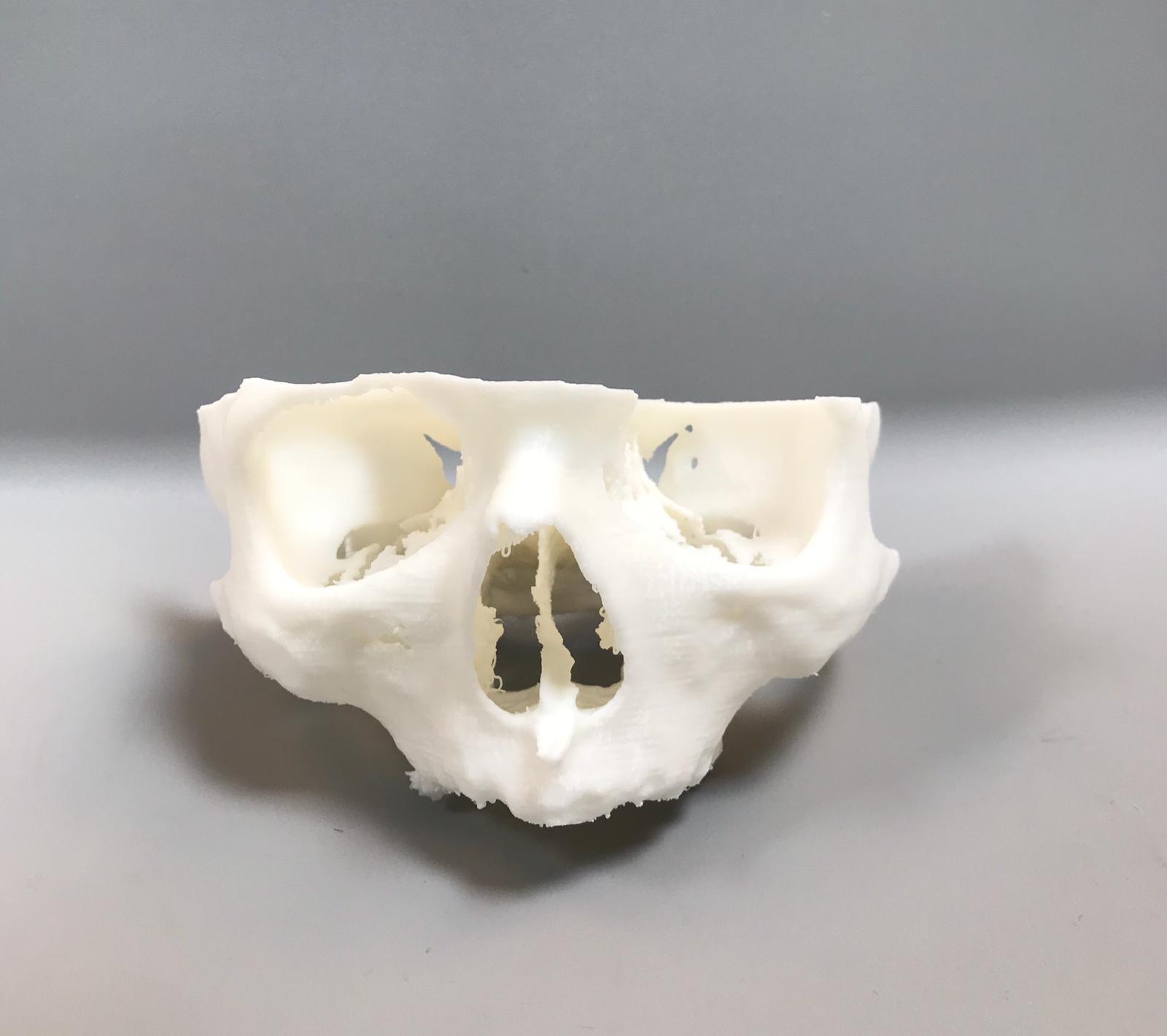 Modelo de mandíbula superior impreso en 3D