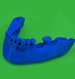Package: 10 3D printed models in PLA from your CT/CBCT scan