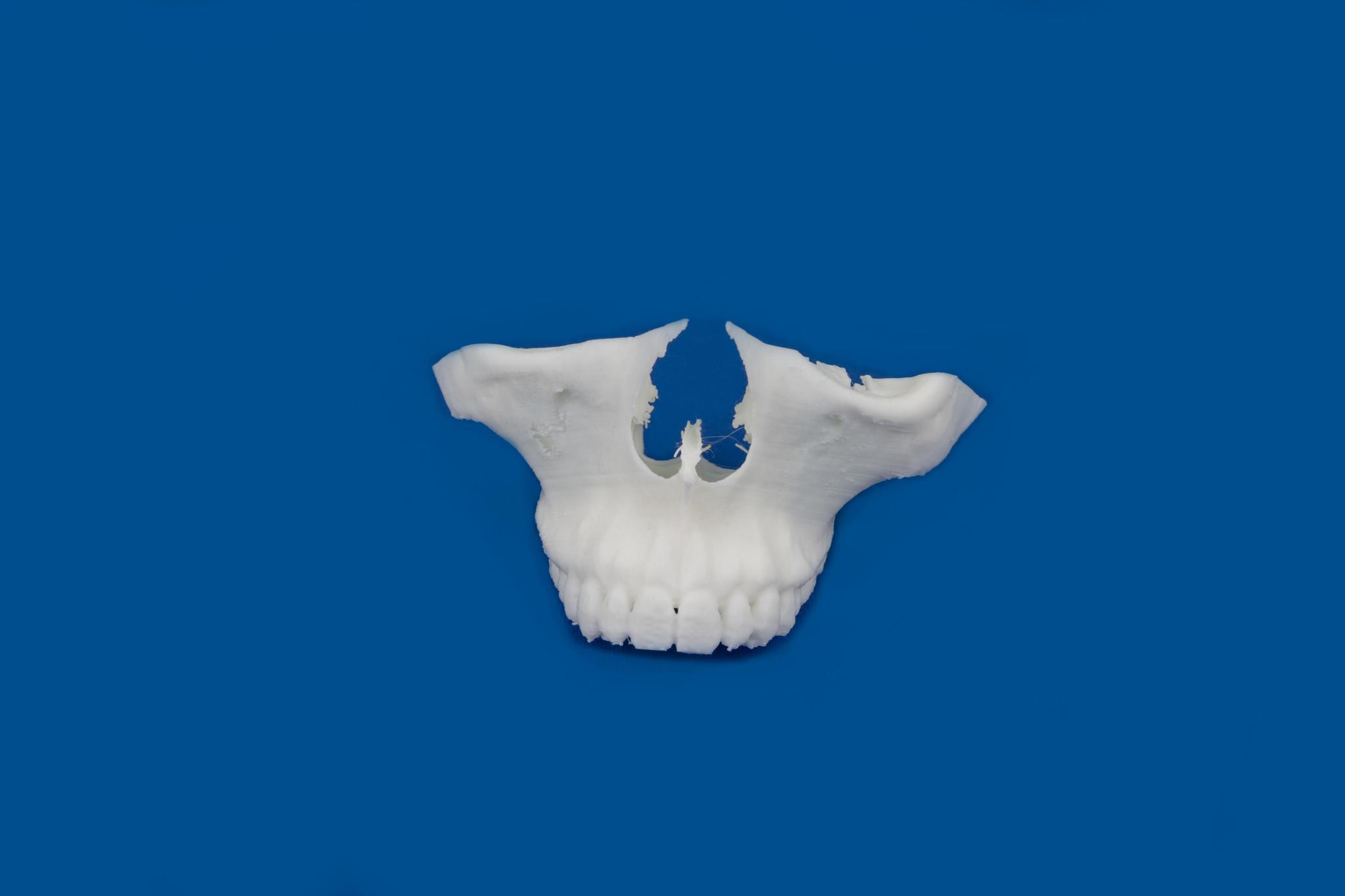 Modello stampato in 3D dai tuoi file DICOM, arcata inferiore o superiore utilizzando PLA